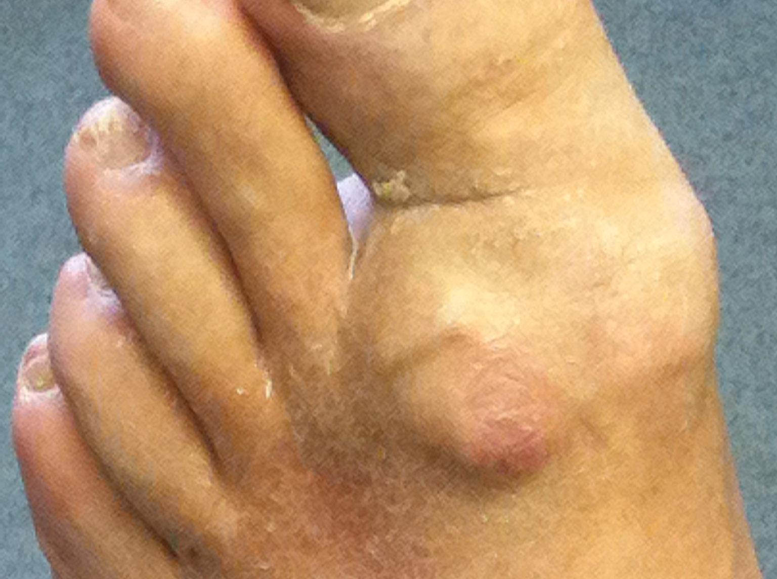 Arthritis Hallux rigidus
