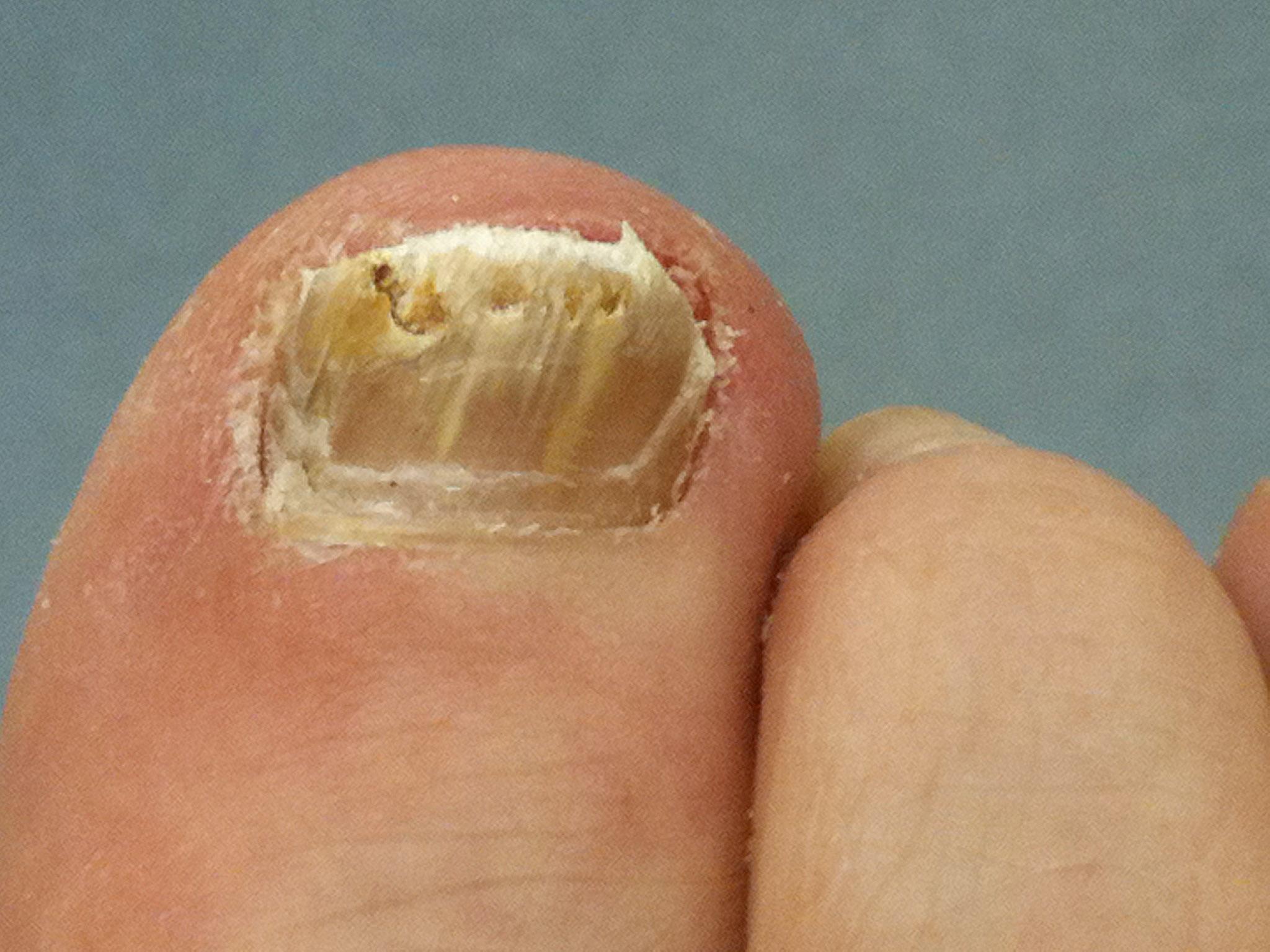 Fungal toenail