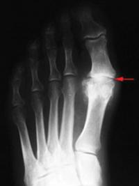 arthritis-xray