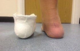 Cast correction of flattened foot prior to fabrication or Orthotic