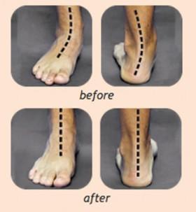 flatfoot-beforeafter