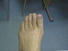 AFTER Hammer toe and shortening surgery of the other foot, 6 months previous.
