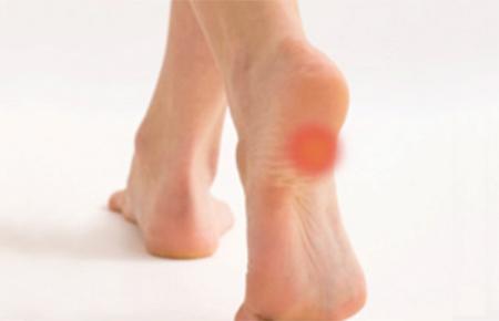 heel-pain-banner