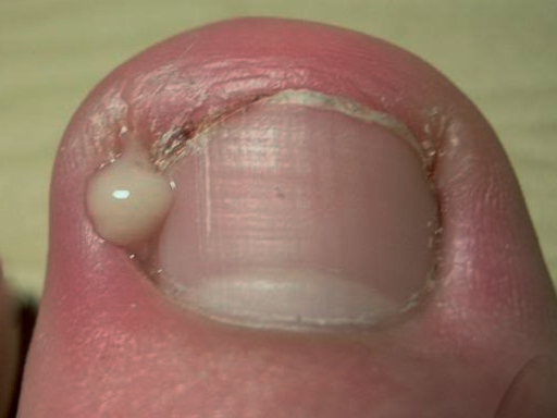 Infected ingrowing nail