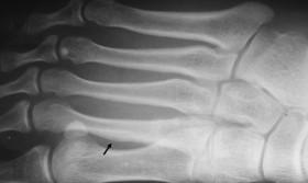 met fracture