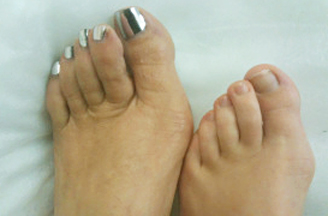 Mother-daughter bunions