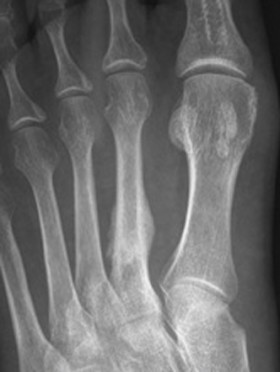 Stress fracture second metatarsal