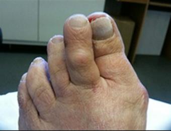 toe amputation
