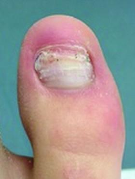 toenail recon beforex